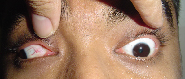 Netra Niwas Eye Services Offered